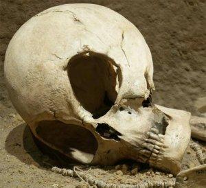 alien skull?